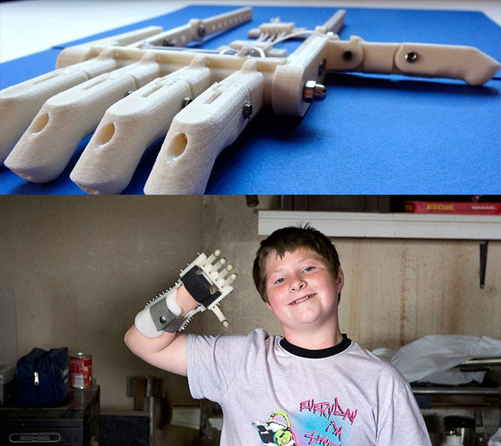robohand-protez